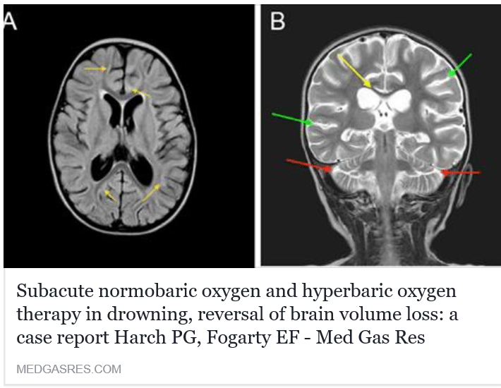 Hyperbaric Oxygen Therapy Can Induce Angiogenesis and Regeneration of Nerve Fibers in Traumatic Brain Injury Patients